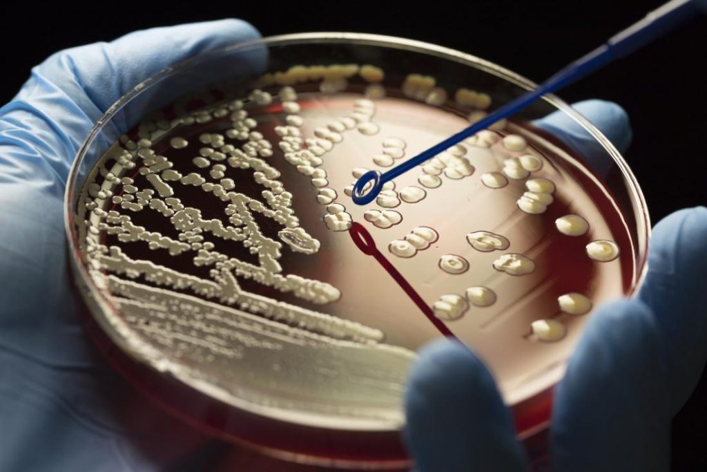 Death Screams' of Bacteria Support Their Comrades Survive Antibiotic Attacks